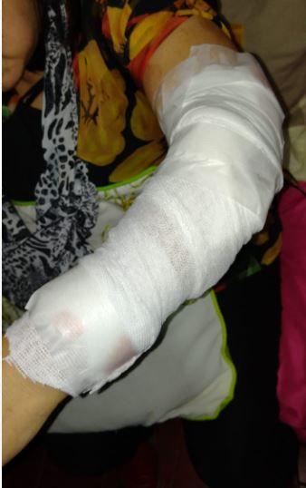Una mujer sufrió mordeduras por parte del perro de su hermana en Candelaria