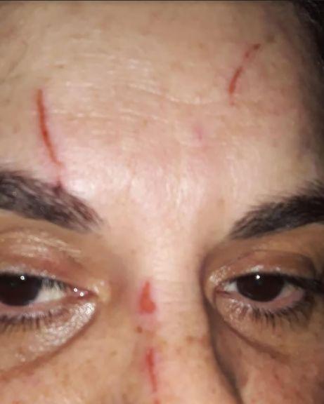 Una mujer denunció a una amiga por lesiones y el robo de $20.000