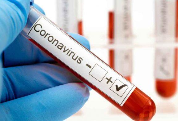 Confirmaron 384 muertes y 16.337 nuevos contagios en Argentina