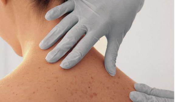 Cáncer de piel: Misiones, con múltiples factores de riesgo para contraer la enfermedad