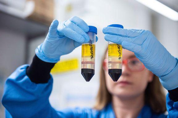 AstraZeneca pidió realizar un estudio adicional de su vacuna