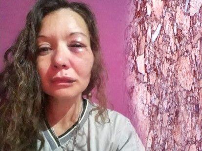 Para robarle la mochila un delincuente atacó brutalmente a una mujer en Jardín América