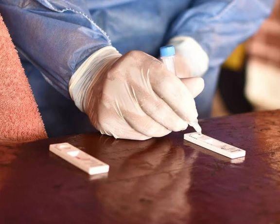 Presentaron un nuevo kit nacional de testeo de antígenos que se producirá en el país