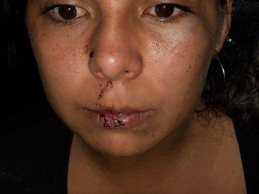 """El desesperado grito de Diana, una mujer violentada: """"Tengo miedo por mi y por mis hijos"""""""
